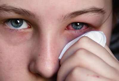 انواع سرطان چشم , علائم و درمان سرطان چشم , سرطان چشم در کودکان